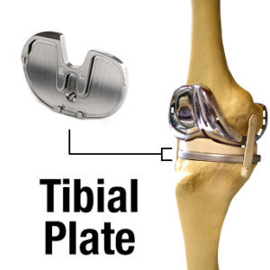 knee replacement issues