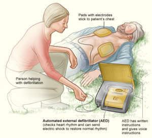 An Automatic External Defibrillator (AED) can save lives